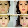 DRK Beauty Clinic เอกมัย