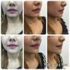 V Square Clinic Botox Filler Center  เมเจอร์ รัชโยธิน (Major Ratchayothin)