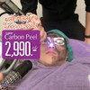 Carbon Peel Laser เหมาทั่วหน้า 2,990/ครั้ง*