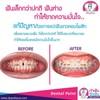 #แปะฟันขาวคอมโพสิท แก้ฟัน ขนาดเล็กกว่าปกติ   โดยหมอเอ้ย คนสวย    ฟันขนาดเล็กกว่า