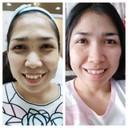Before & After ผลลัพธ์สามวันหลังทำ รอยตีนการอยใต้ตาหายวับ!
