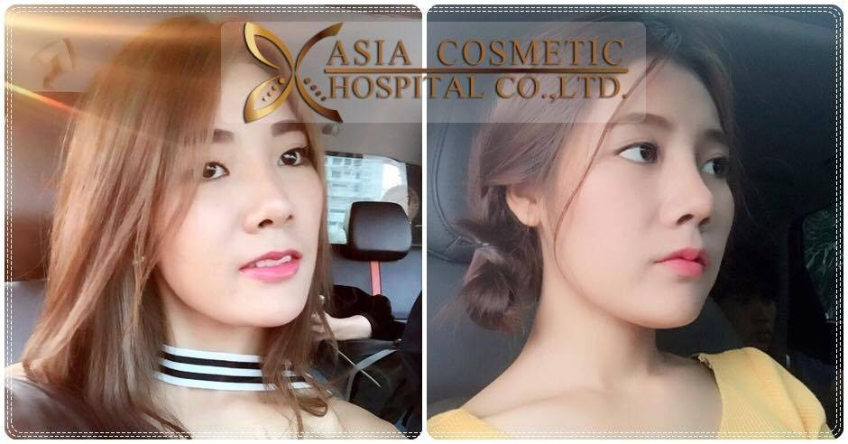 Asia Cosmetic Hospital
