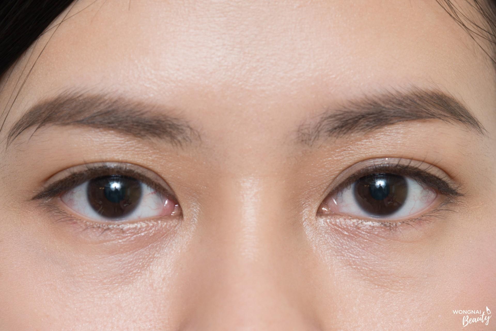 วิธีแก้ขอบตาดำเพราะภูมิแพ้!