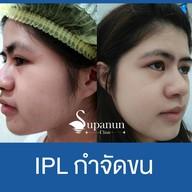 เมนูของร้าน Supanun Clinic