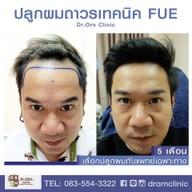 เมนูของร้าน Dr.ORN Hair transplant center