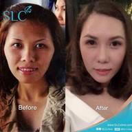 SLC Siam Laser Clinic เซ็นทรัลพลาซา ลาดพร้าว