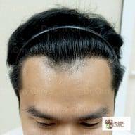 Dr.ORN Hair transplant center