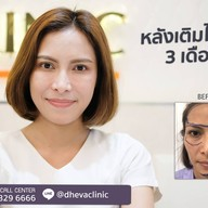 เมนูของร้าน DHEVA CLINIC สุขุมวิท-พัทยาเหนือ / พัทยาสาย2