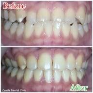 เมนูของร้าน Csmile Dental Clinic   ซีสไมล์ คลินิกทันตกรรม ทันตกรรม