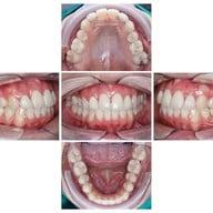 Dente Align Clinic