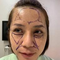 P10 Clinic ( Surgery Cosmetic ) เมเจอร์รัชโยธิน