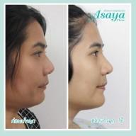 Asaya Clinic