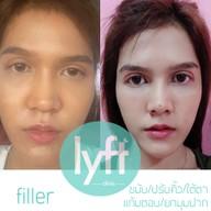 Lyft Clinic ชลบุรี