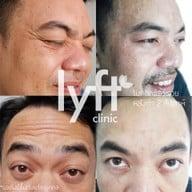 flyff clinic สาขานิคม 304 ปราจีนบุรี สาขานิคม 304 ปราจีนบุรี