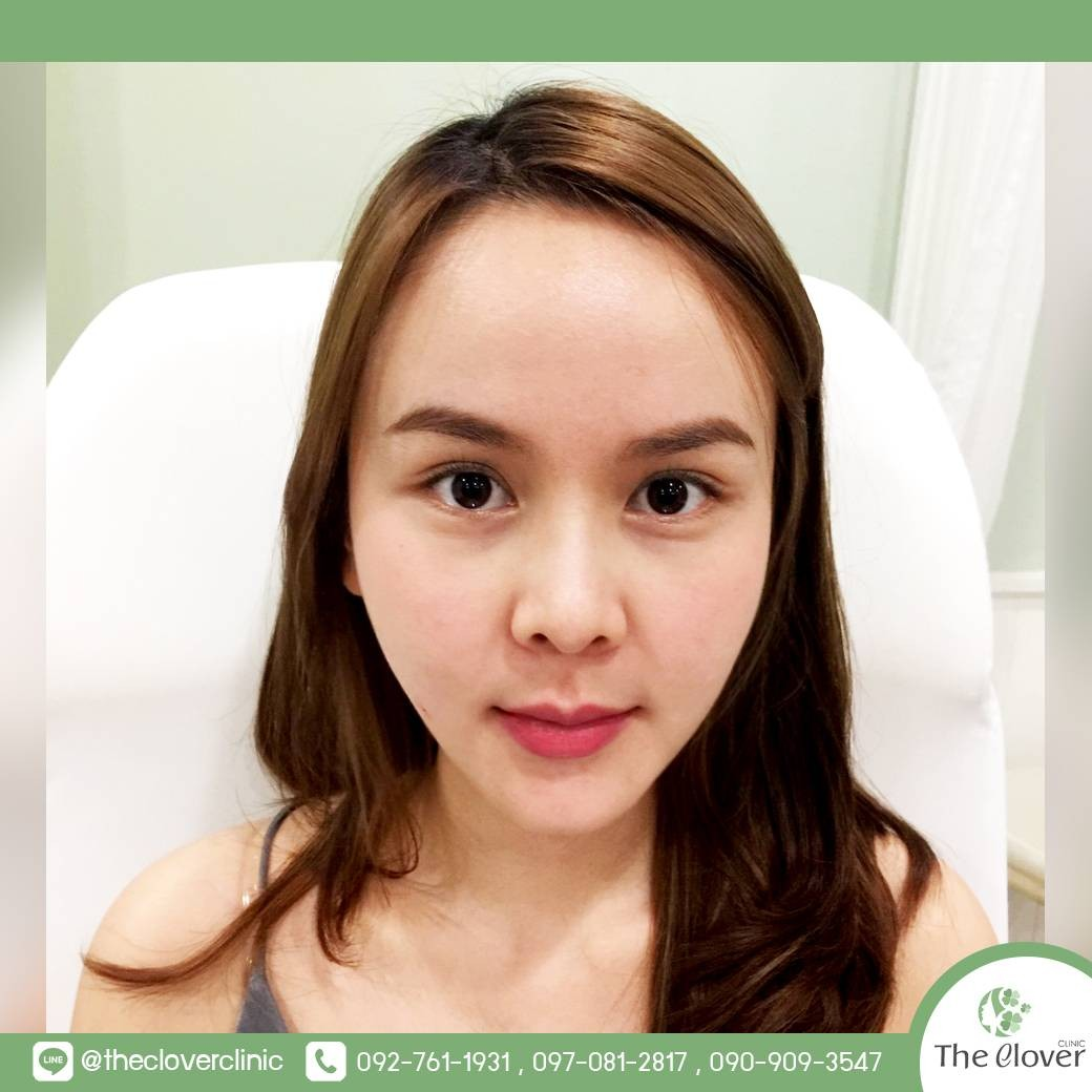 The Clover Clinic Siam Square One