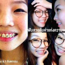 จัดฟัน 2 ปี <3