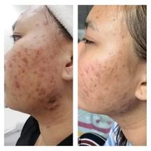 รูปซ้ายคือ ก่อนเข้ารักษาเดือนตุลาคม ภาพขวา ระหว่างรักษาเดือนมกราคม