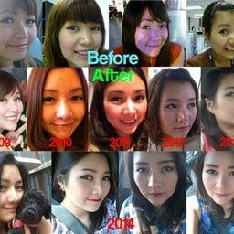 Before & After ทำจมูกหมอบุญถิ่น (ทำแล้วปลายจมูกงุ้มออกมานิดนึงด้วยค่ะ)