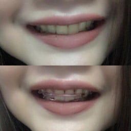 Smile gallery dental clinic อุดมสุข