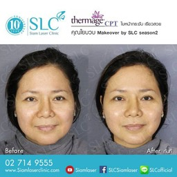 SLC Siam Laser Clinic สยามสแควร์วัน