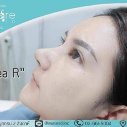 Munare Clinic กรุงเทพ