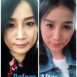 เสริมความมั่นใจ ด้วยBotoxปรับรูปหน้าให้เรียวเล็ก, Botoxยกคิ้ว ทำให้ดูตาโตขึ้นค่ะ