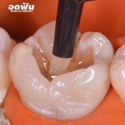 เมนูของร้าน ศาลาแดง ซ.1 ทันตกรรม (SDC1st Dentist)