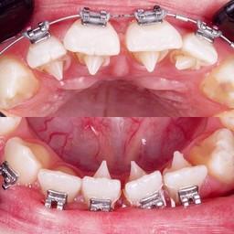 ศาลาแดง ซ.1 ทันตกรรม (SDC1st Dentist)