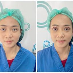 Double P Clinic ศัลยกรรมตาสองชั้น ตัดถุงไขมันใต้ตา เสริมจมูก เสริมคาง ตัดไขมันกระพุ้งแก้ม ดูดไขมัน กรุงเทพ