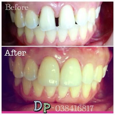 Dental Point Clinic pattaya  คลินิกดัดฟัน ร้านจัดฟัน ทำฟัน พัทยา
