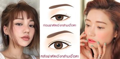 5 เทคนิคศัลยกรรมตา 2 ชั้น ให้สวยหวานแบบสาวเกาหลี