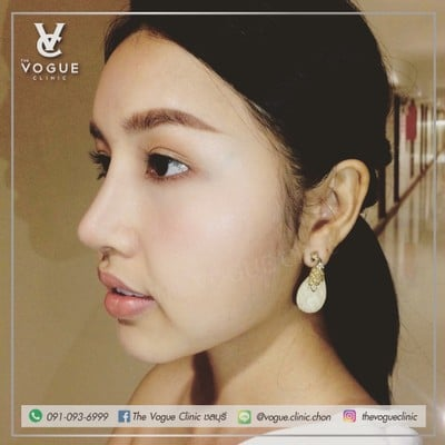 The VOGUE Clinic ชลบุรี