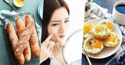 สิวจากอาหาร กินไม่ดีโดนบุกได้ง่าย ๆ