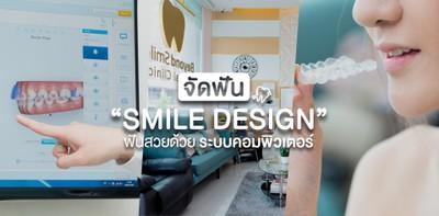 """จัดฟันแบบ """"Smile Design"""" ฟันสวยด้วยระบบคอมพิวเตอร์"""
