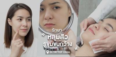 รีวิว : รักษาหลุมสิว รูขุมขนกว้าง ที่ Dr.TATTOF Clinic