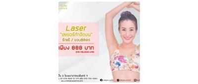[Deal] Laser กำจัดขน รักแร้ / ขอบ Bikini จากราคาปกติ 15,000 บาท ลดเหลือ 888 บาท