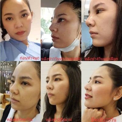 SLC Siam Laser Clinic พาราไดซ์ พาร์ค
