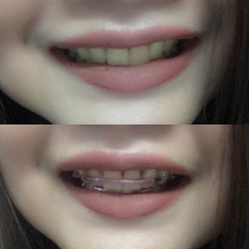หลังจัดฟัน ฟันสวยขึ้นมากกกก