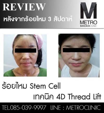 Metro Bangkok Clinic